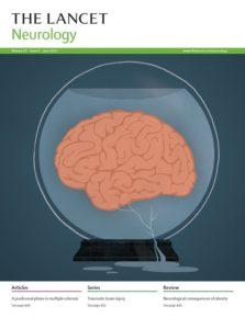Lancet Neurol. 2014 Oct;13(10):1006-1016